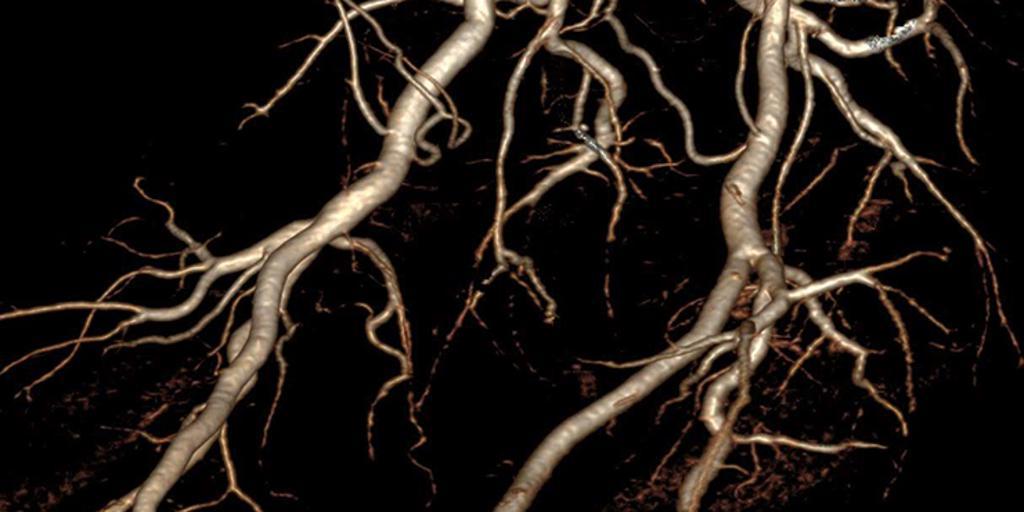Iliac branches
